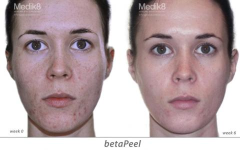 Chemical Peels behandeling