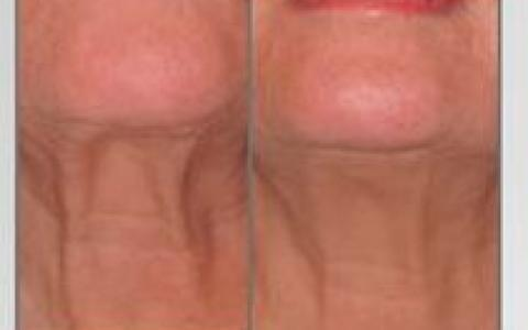 Instant RF face lifting behandeling
